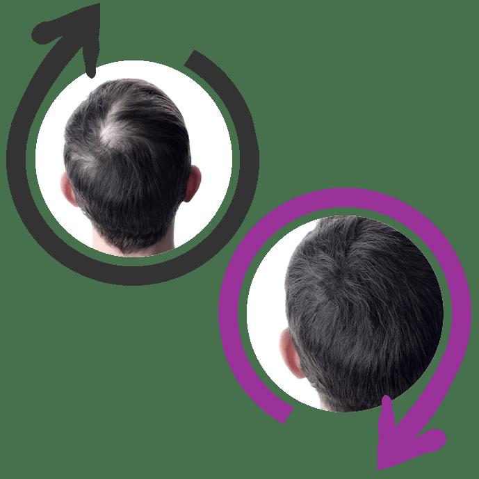 integratori per far crescere i capelli